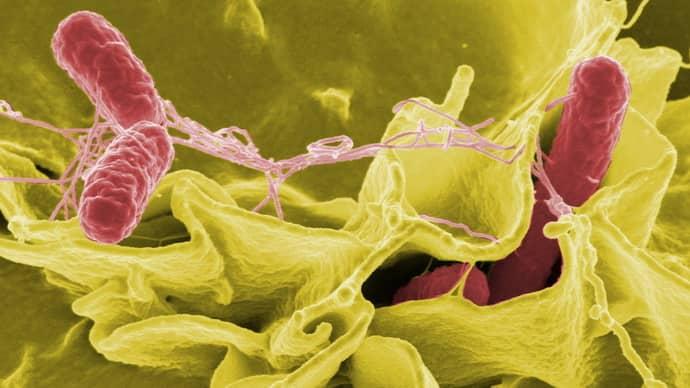 Причины инфекционного колита