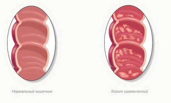 Ишемический колит: причины заболевания, методика лечения