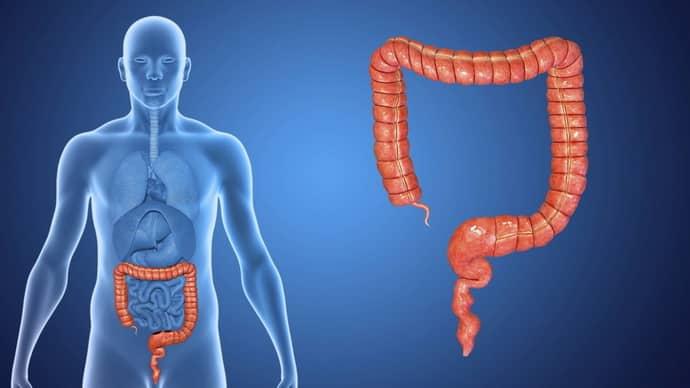 Ишемический колит, описание болезни, группа риска, способы лечения