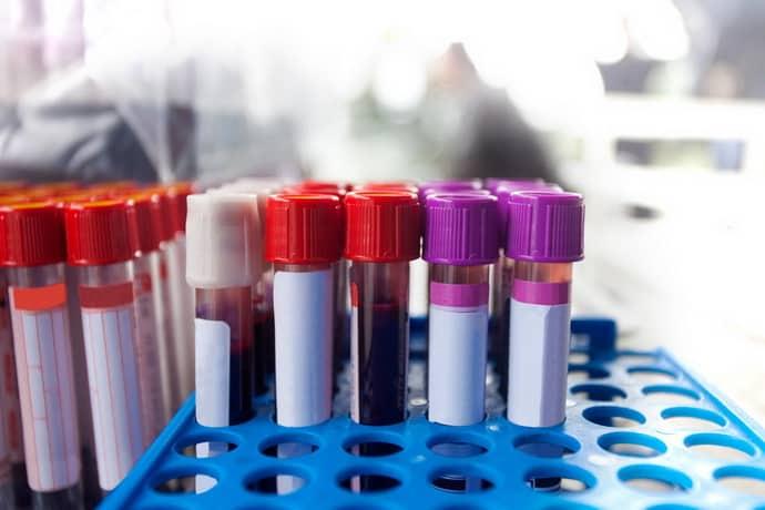 Анализ крови при катаральном аппендиците