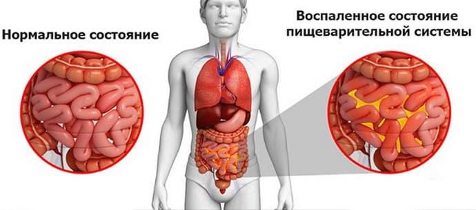 Осложнения при кишечной непроходимости