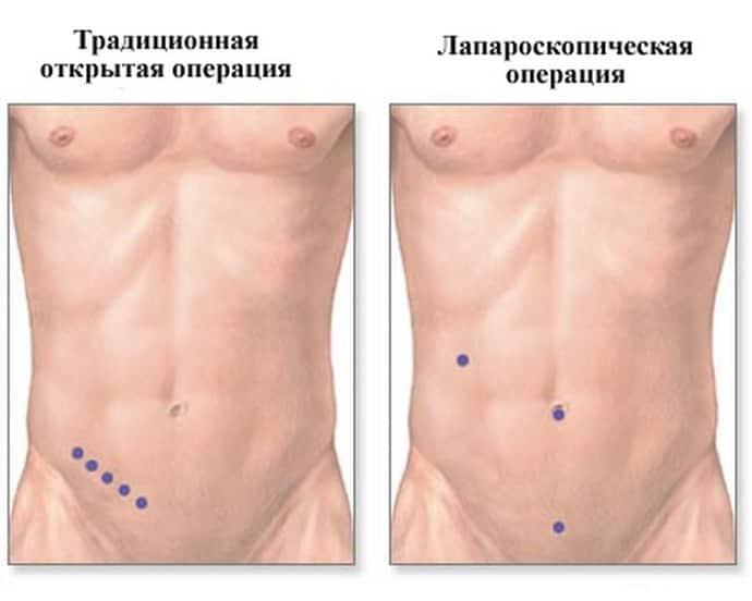 Преимущества лапароскопии