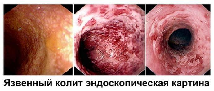 лечение неспецифического язвенного колита препараты