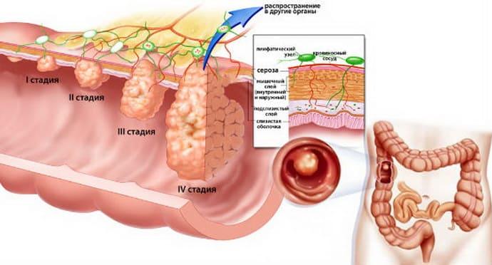 Что такое полипы в кишечнике