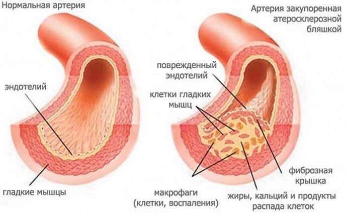Тромбофлебит после острого аппендицита