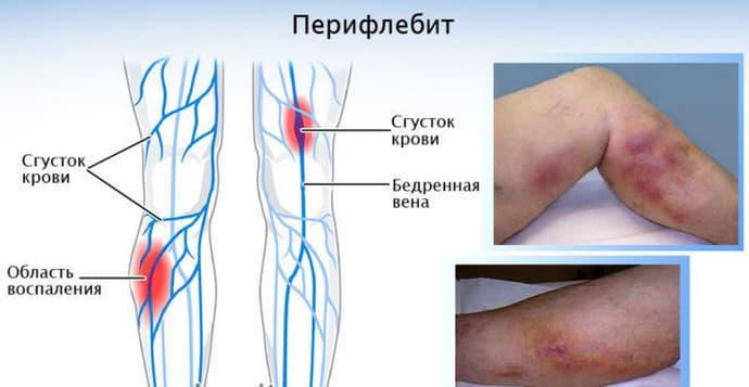 Перифлебит после острого аппендицита