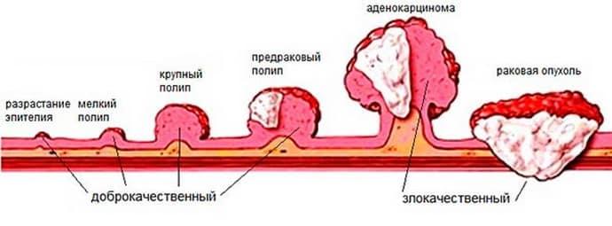 Полипы в прямой кишке: симптомы, причины и удаление