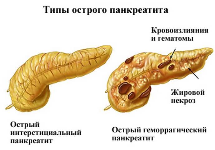 Панкреатит при гастрите