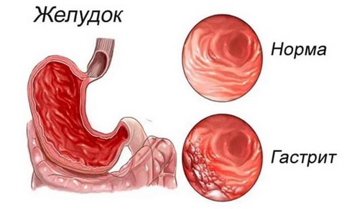 Дисбактериоз при гастрите