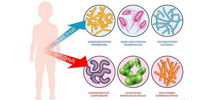 Виды дисбактериоза