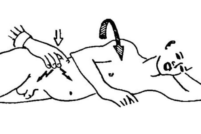 Симптом Ситковского для определения аппендицита