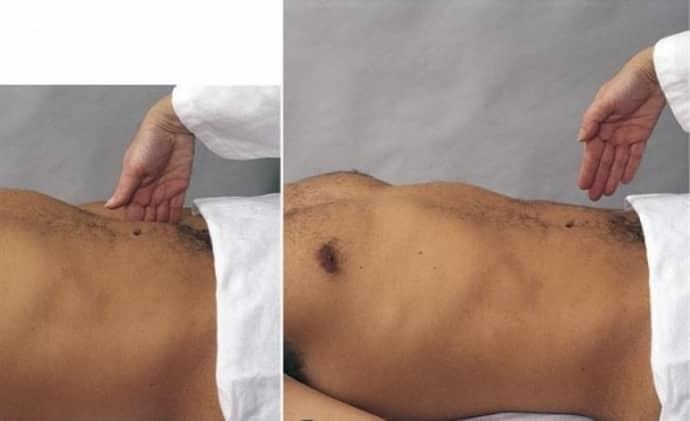 Симптом Щеткина -Блюмерга для определения аппендицита