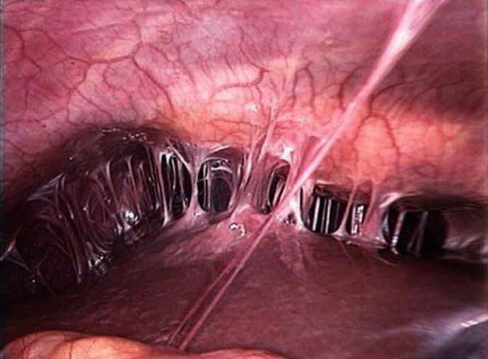 Спаечная кишечная непроходимость: симптомы и лечение