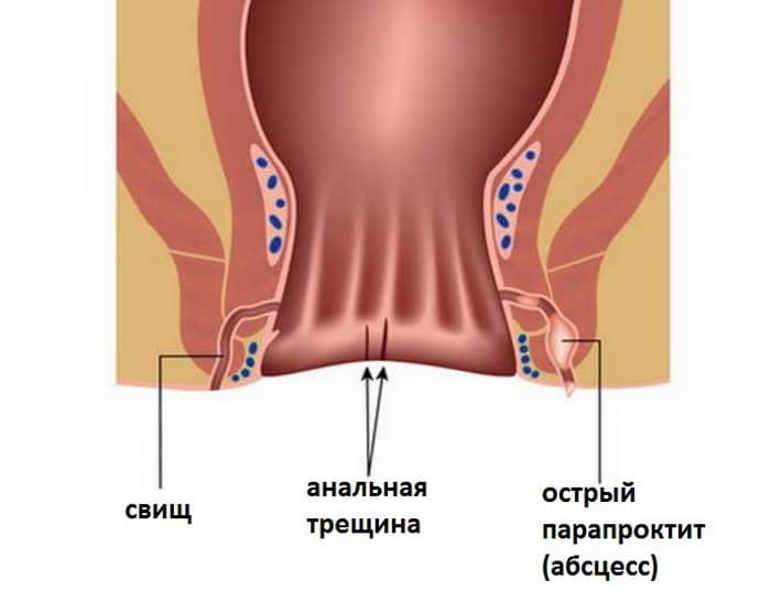 свищ прямой кишки после операции восстановление