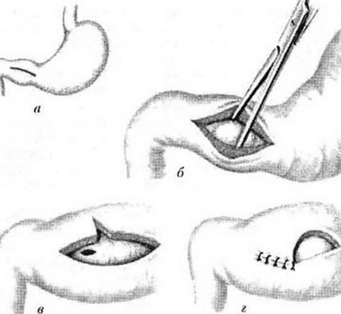 Виды операции при кишечной непроходимости